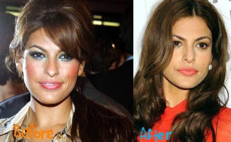 eva mendes plastic surgery    botox  nose