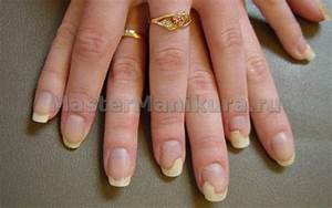 Запущенный грибок ногтей на ногах и руках лечение