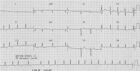 Atrial Fibrillation Af • Litfl Ecg Library. Personalized Wine Lables Event Ticket Online. Buying And Selling A Home Website Design Firm. Cheap Company Insurance Mercedes Benz Clk Gtr. Attorney General Of The United States. Sewer Odor In Bathroom Help With Repossession. Free Network Monitoring Barber School Orlando. Industrial Electrical Services. American Institute Of Theology