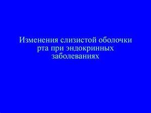 Лечение остеохондроза нижегородской области