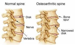 ... up your spine spinal stenosis putting pressure on your spinal cord  Spinal Stenosis Spinal Diseases