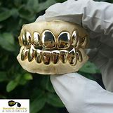 Gold Teeth Grillz | 2560 x 2560 jpeg 1303kB