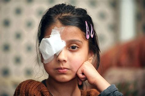 blind in one eye hajrah shabir has been blinded in one eye by a that