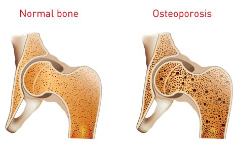 Osteoporosis   Pictures, posters, news and videos on your pursuit, hobbies, interests and worries