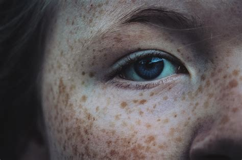 Dealing With Pigmentation Ayurvedic Health Tips For
