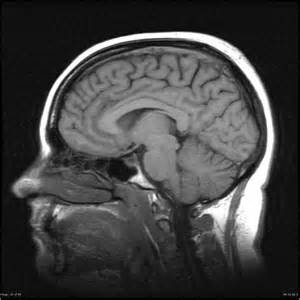 Benign intracranial hypertension - Radiology Case - Radiopaedia.org Benign Intracranial Hypertension