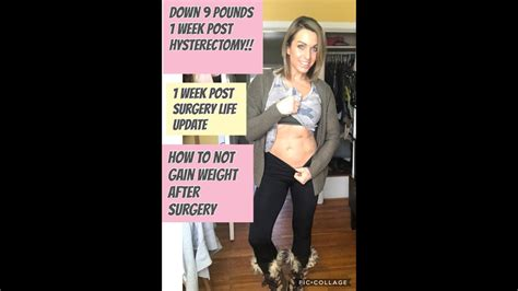Weight Loss After Total Abdominal Hysterectomy ...