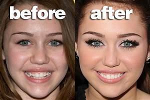 Miley Cyrus Teeth | www.imgkid.com - The Image Kid Has It!