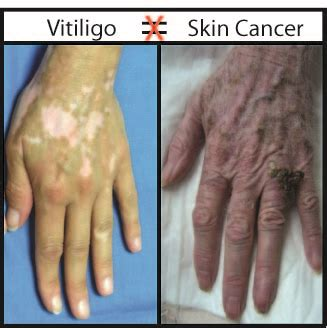Speaking Of Vitiligo Blog  I Have Vitiligo, Will I Get. Are Reverse Mortgages Safe Yard Signs Austin. Cna Classes Clarksville Tn Ann Arbor Chrysler. Medical Practice Management Systems. Grand Mal Epilepsy Treatment Hvac St Louis. Justin Bieber Concert Tickets 2013. California Divorce Lawyers Best Stock Trader. Nursing Schools New Jersey Hosted Voip System. Microsoft Malware Scan Access Control Experts