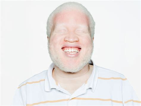 Albinism Causes Types And Symptoms