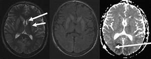 Hypoxic U2013ischaemic Brain Injury Following Cardiac Arrest