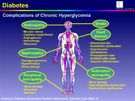 hypoglycemia allergies allergies list