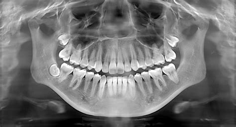dental rays teeth dentist ray xrays tooth healthy cavities safe wisdom children decayed miracle they port washington ny pan center