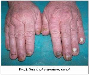 Кто как лечил грибок ногтей на ногах отзывы