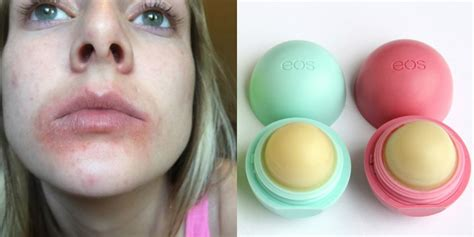 Is This Lip Balm Really Causing Rashes What To Know About