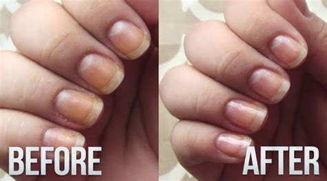 natural   whiten yellow nails  quick trick