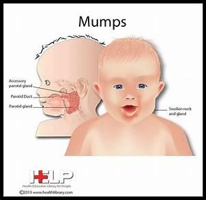 18 best παρωτίτιδα-mumps images on Pinterest ...
