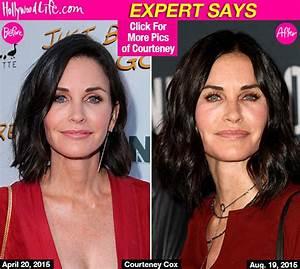 PICS Courteney Coxs Puffy Face Has Actress Had