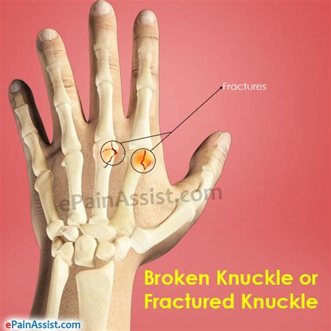 Broken Knuckle Or Fractured Knuckle Treatment And Symptoms. Multistate Bar Exam Prep Cost Of Ddos Attacks. Senior Care San Jose Ca Uverse Internet Plans. Shipping Your Car Overseas Und Online Degrees. No Fee Balance Transfer Card. Vet Assistant Online Courses. How To Become A Child Therapist. Carpet Furniture Cleaning Hplc Column Packing. Virginia Beach Legal Aid Webex Join A Meeting