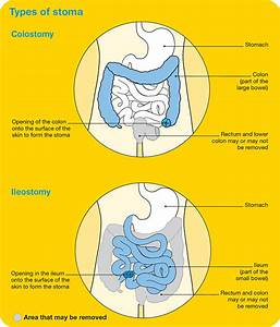 26 How To Change A Colostomy Bag Diagram