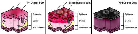 assessment of burns :: www.forensicmed.co.uk