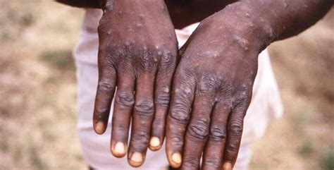 WHO traces recent Monkeypox outbreak in UK to Delta | The ...
