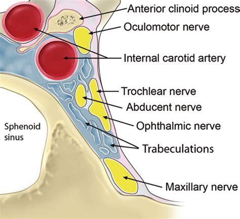 schematic organization   cavernous sinus  coronal