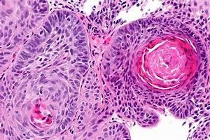 Carcinoma  Squamous Cell  Carcinoma  Epidermoid  Carcinoma