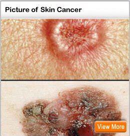 skin    spot skin cancer