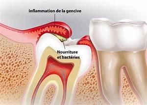 Douleurs Dents De Sagesse : tout savoir sur les dents de sagesse et leur extraction ~ Maxctalentgroup.com Avis de Voitures