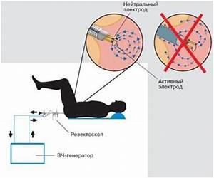 Бутакова лечение аденомы