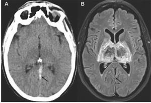 Bilateral Thalamic Infarction - The Western Journal of Emergency Medicine Osteopathic Medicine