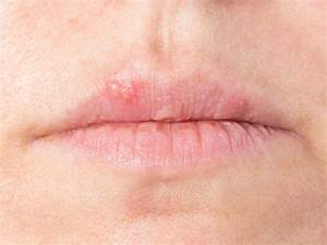 Home Remedies  Coping With Cold Sores