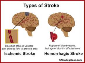 ... to have stroke stroke monitoring pulse regularly after stroke helps Stroke