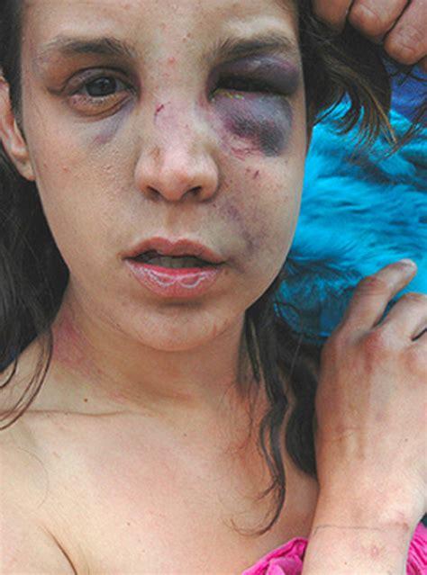 Women Domestic Violence Victims