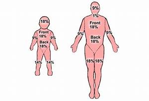 Burn Percentage Chart Rule Of 9 Burn Management Are You Making Critical Mistakes