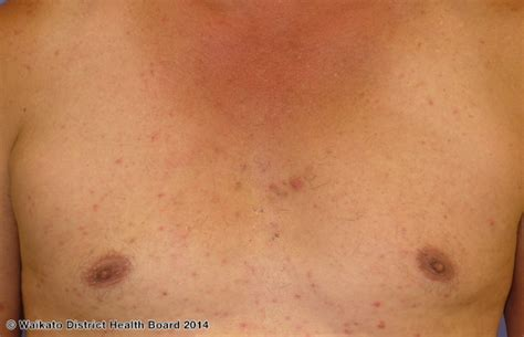 hormone pills hormonal and steroid acne causes and pictures ehealthstar
