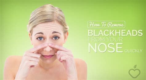 How To Remove Blackheads From Your Nose Quickly