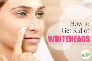 How to Get Rid of Whiteheads on Nose and Face | Fab How