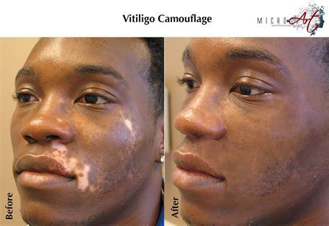 vitiligo treatment  microart semi permanent makeup