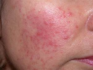 Rosacea  Seeing Red In Primary Care