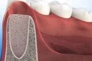 Socket After Tooth Extraction