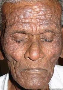 S P Derma Center Dermatlogy Cases