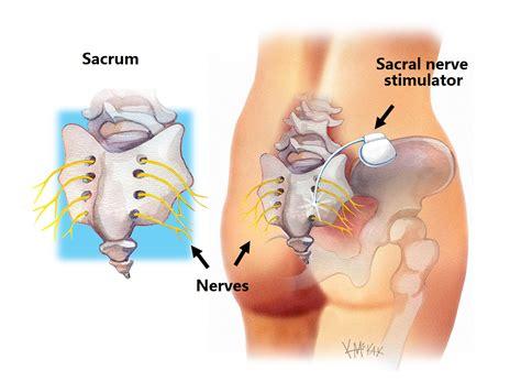 faecal incontinence colorectal surgeons sydney