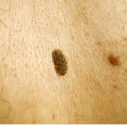 Cancerous Moles Pictures   MedicalPictures net  Cancerous Mole