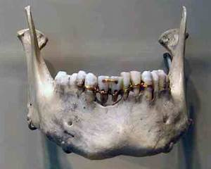 Ancient Dentistry Part 2: A Mummy, A Mystery and Queen ...