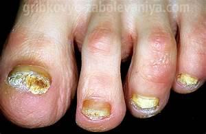 Как быстро вылечить застарелый грибок ногтей