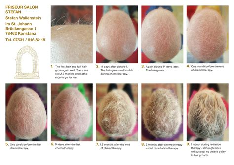 Haarwuchs Spezialist Hairloss After Chemotherapy My