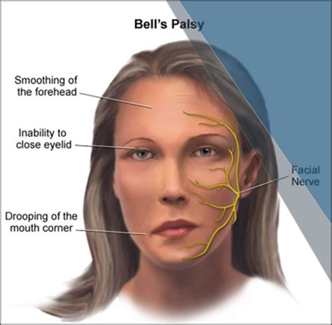 Ayurvedic Treatment Of Bell's Palsy, Herbal Remedies. Normal Person Signs. Before Stroke Signs. Friend Signs. Free Clip Art Signs. Degree Signs. Foot Blister Signs. Luck Signs. Breast Cancer Symptom Signs Of Stroke