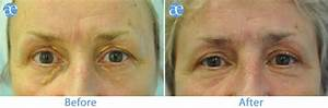 Milia Removal Before And After | www.pixshark.com - Images ...